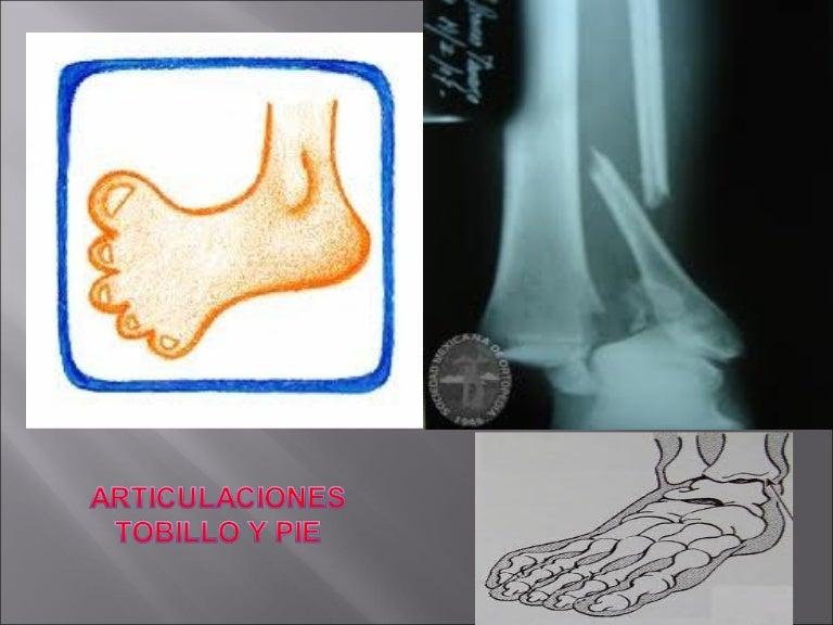 artroza articulației ram-calcaneo-naviculară