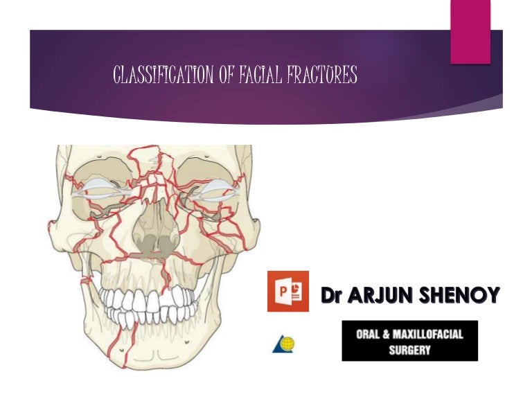 Think, comminuted facial fracture