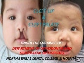 Cleft lip & cleft palate