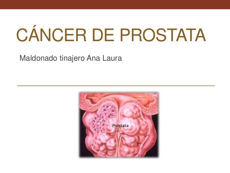 cálculos en la próstata y la infección de la vejiga icd 10