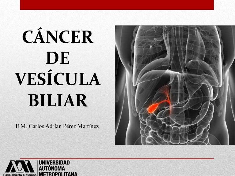 cancer biliar imagenes
