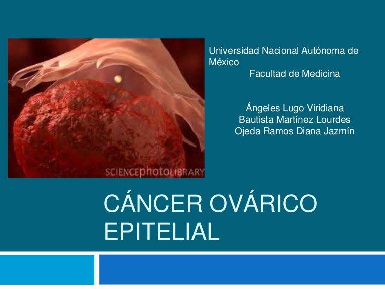 cancer epitelial de ovario sintomas