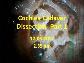 Cochlea cadaver dissection - part 1