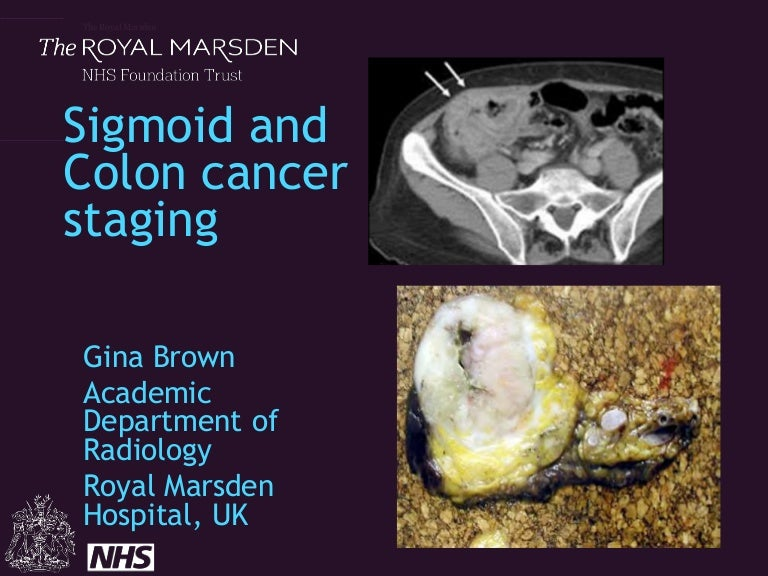 Staging Colon And Sigmoid Cancer By Ct And Mri