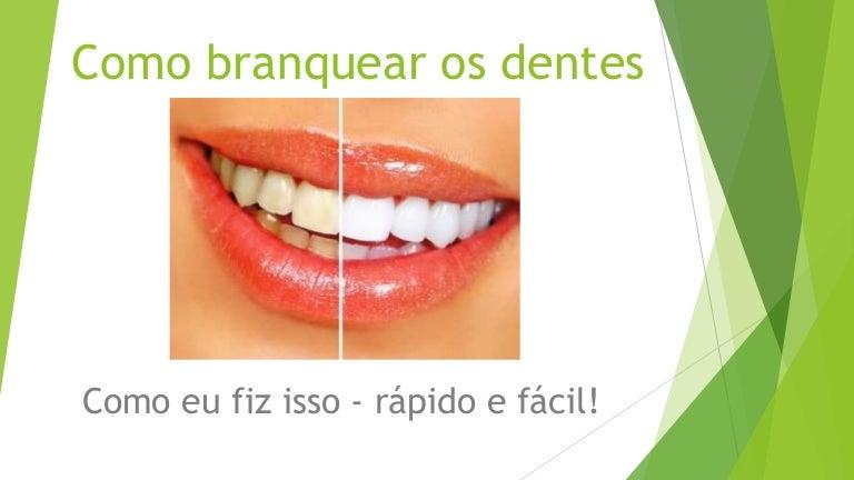 Tag Como Clarear Os Dentes Rapido