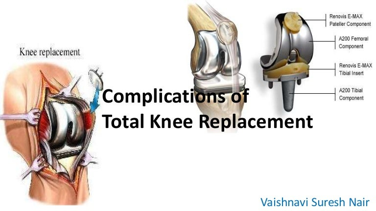 Complicationsoftotalkneereplacement 141124001924 conversion gate01 thumbnail 4gcb1416788426 ccuart Image collections