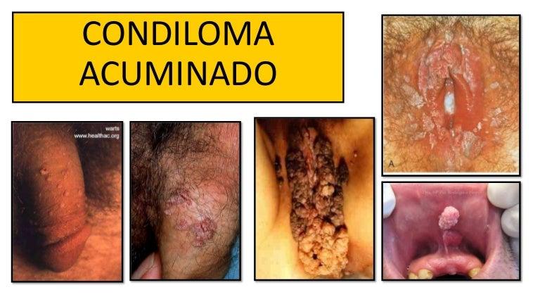 virus papiloma condiloma acuminado