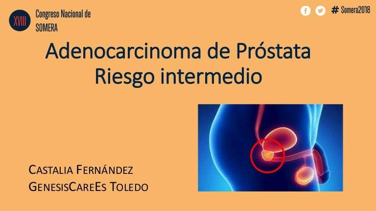 recurrencia novedad y cáncer de próstata