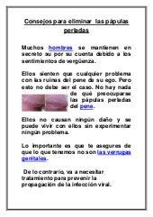 remedios caseros para eliminar las papulas perladas