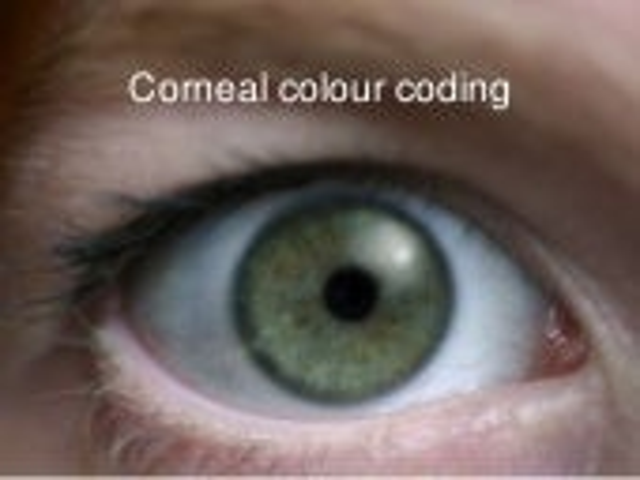 Eye colour coding