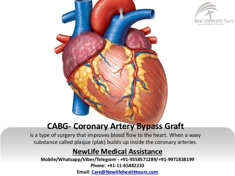 Coronary artery bypass grafting | theindependentbd.com