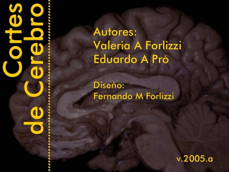 Cortes Cerebro