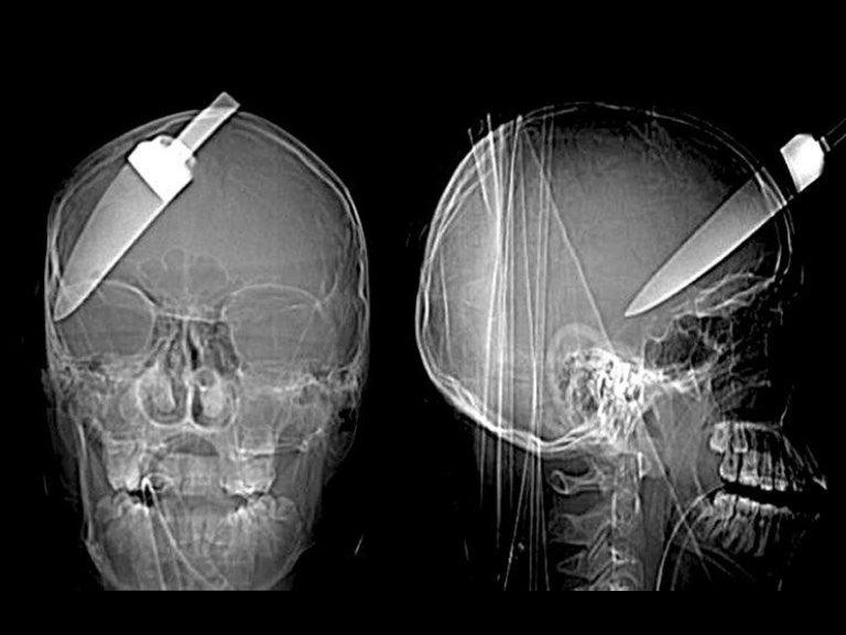 Craziest X-rays