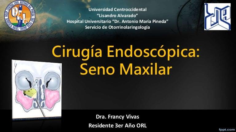 Cirugia Endoscópica de Seno Maxilar