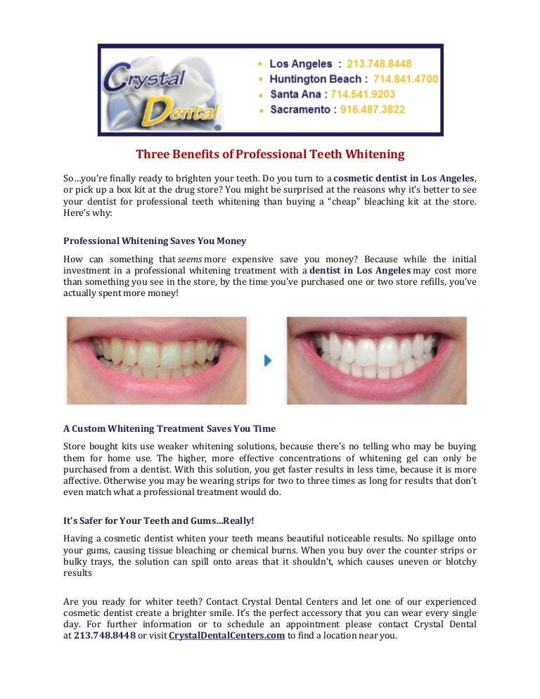 Three Benefits Of Professional Teeth Whitening