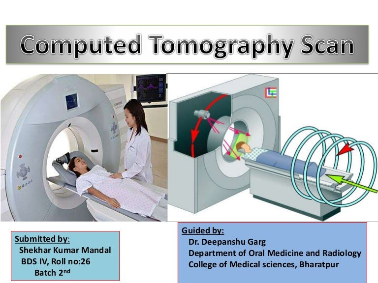 Ct Scan Final 2