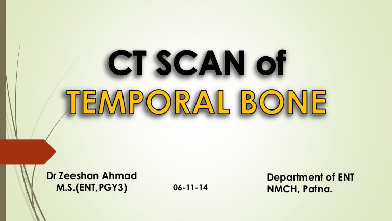 Ct Scan Temporal Bone Dr Zeeshan Ahmad