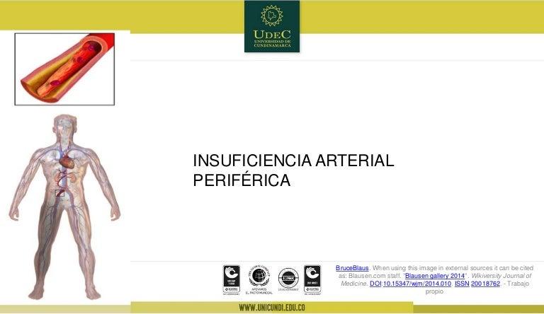 Insuficiencia Arterial periférica e insuficiencia venosa