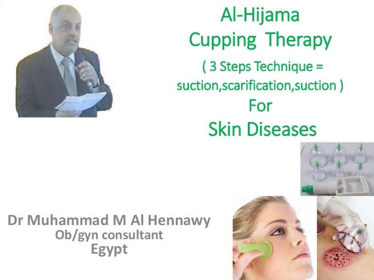 cu varicosera hijama