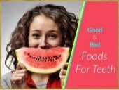 The Dental Diet - What Foods are Good or Bad for Dental Hygiene
