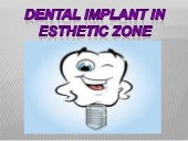 Dental implant in esthetic zone