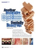 Dr. Irfan Atcha's  Dentaltown Article on All-on-4 Dental Implant Concept.