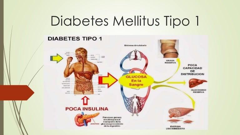 Diabetes mellitus-tipo-1