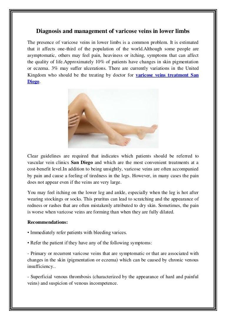 varicose sclera