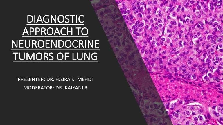 Neuroendocrine cancer lungs prognosis - Papilloma squamoso del palato