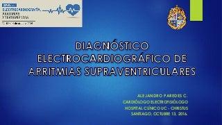 Diagnóstico electrocardiográfico de las arritmias supraventriculares
