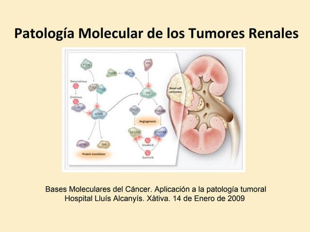 Diagnóstico Molecular del Carcinoma Renal