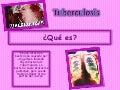 Diapositivas Tuberculosis