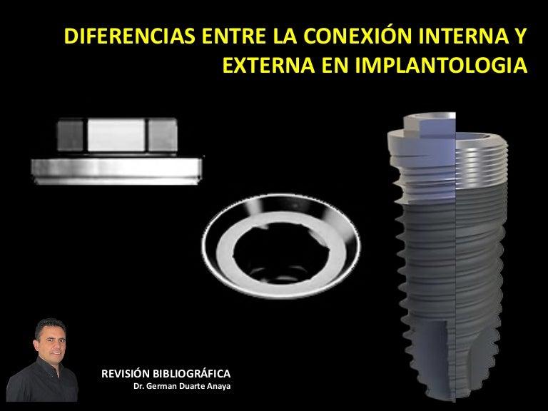 Diferencias Entre La Conexi N Externa E Interna En