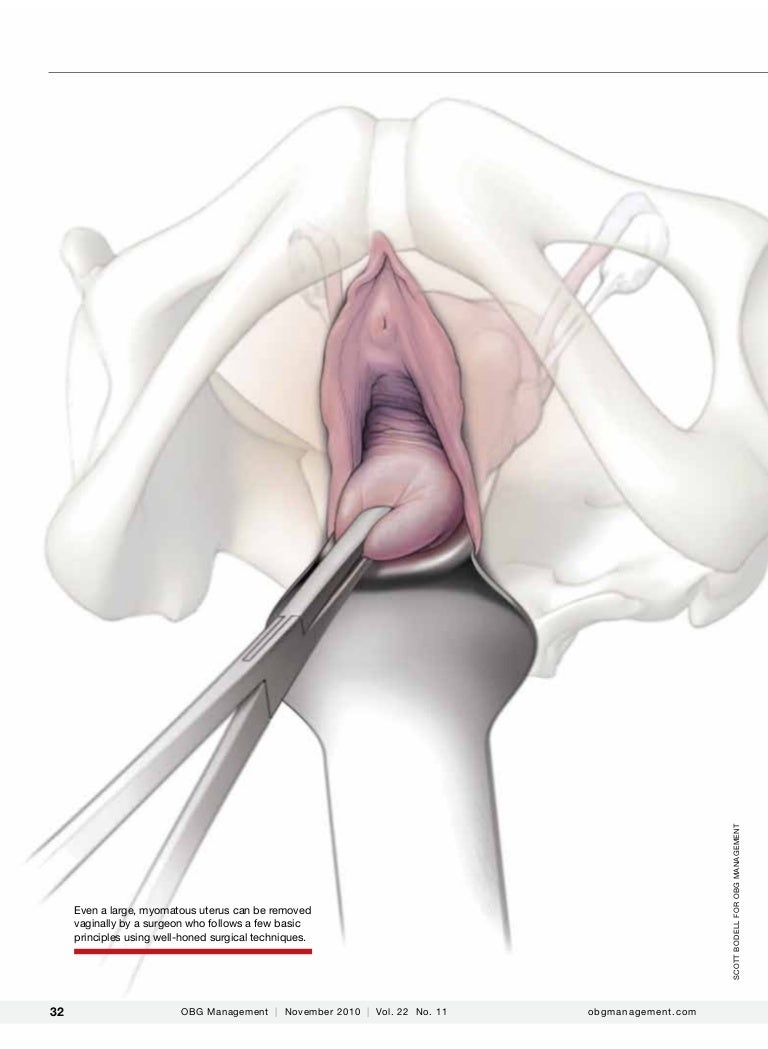 olympics-japan-orgasm-soon-after-a-hysterectomy-romanian