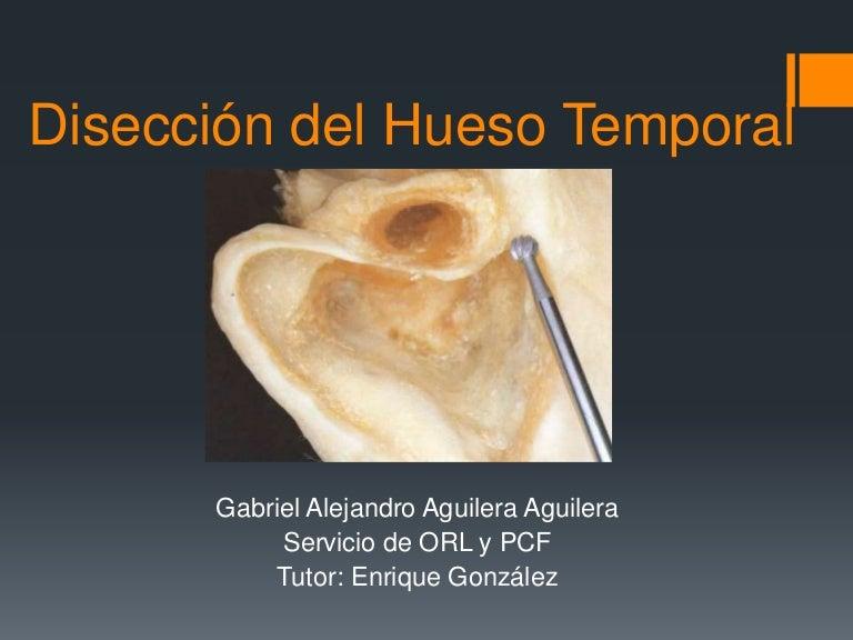 Disección quirugica temporal