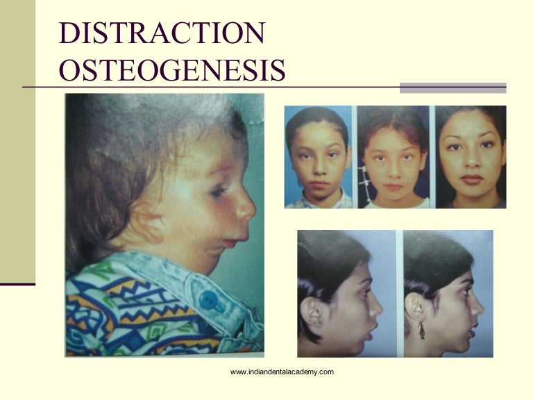 Osteogenesis in adults have forgotten