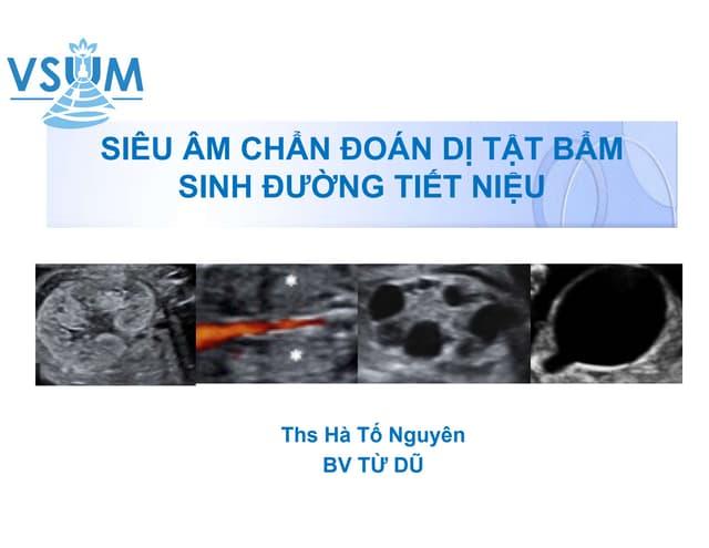 Sieu-am-chan-doan-di-tat-bam-sinh-duong-tiet-nieu