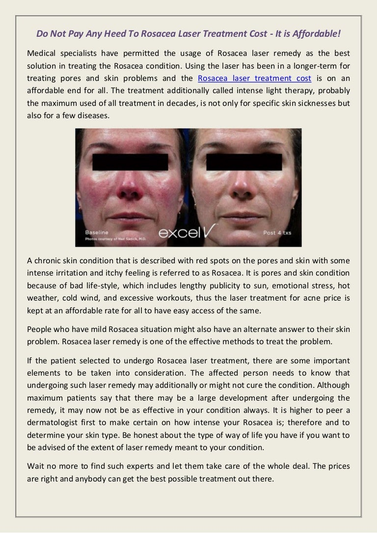 Do Not Pay Any Heed To Rosacea Laser Treatment Cost It Is Affordable