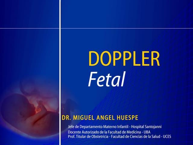 Doppler general