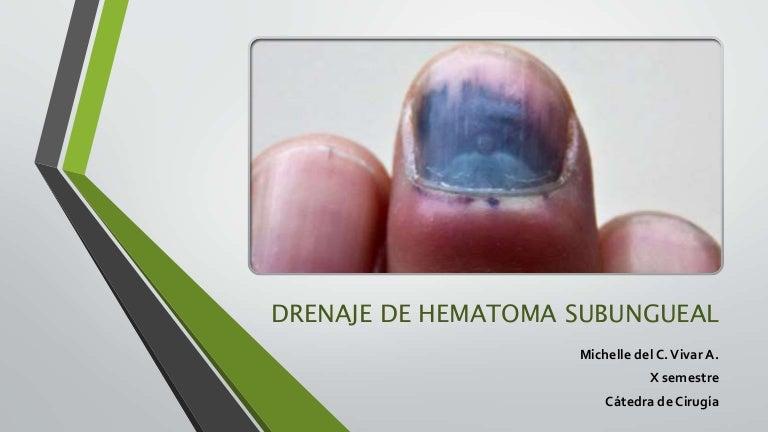 ¿Los tumores duelen como hematomas?