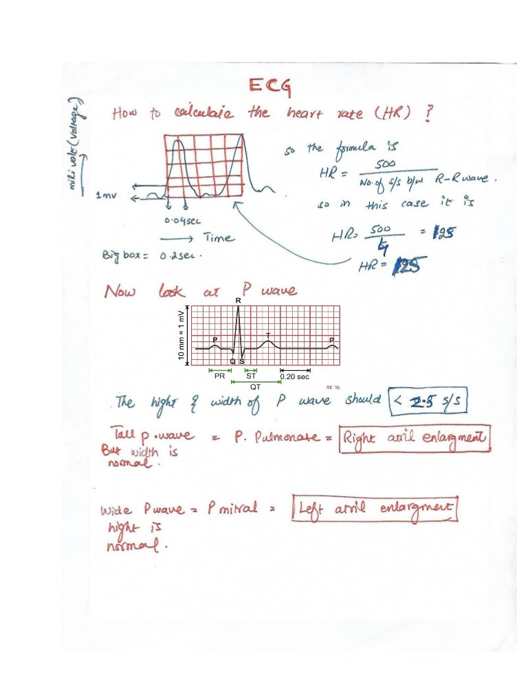 How to read ecg electrocardiogram ccuart Choice Image