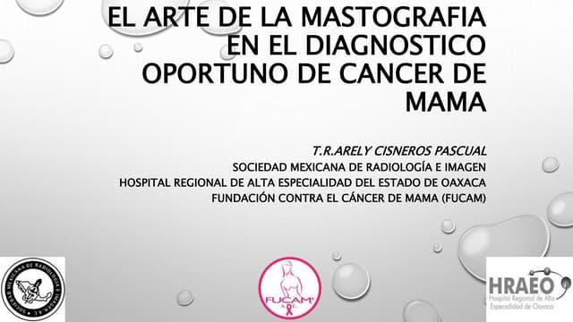 El arte de la mastografia en el diagnostico