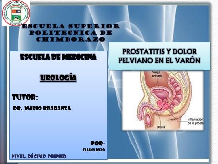 mejor ciprofloxacina o levofloxacina para la prostatitis crónica 2