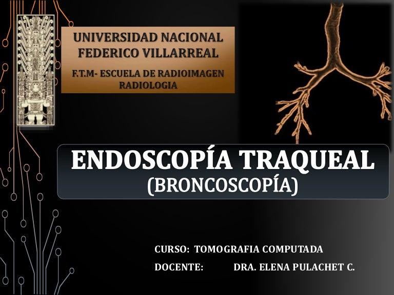 Endoscopia.bronquial.2017