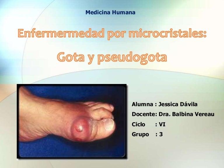 tratamiento para el acido urico aumentado que no puedo comer por el acido urico causas del acido urico en las manos