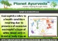 Ayurvedic medicine for eosinophilia