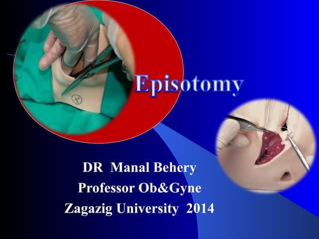 Episotomy for undergraduate