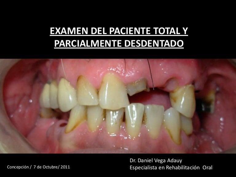 Examen del paciente total y parcialmente desdentado