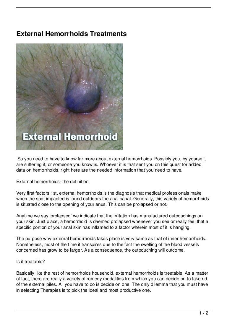 external-hemorrhoids -treatments-130126024721-phpapp01-thumbnail-4.jpg?cb=1359169381
