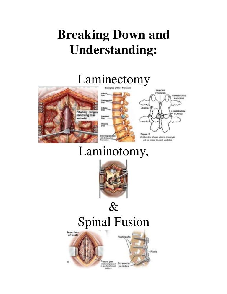 Breaking Down and Understanding Laminotomy, Laminectomy